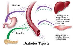 diabetes 222