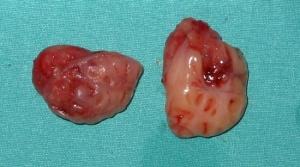 Amigdalas palatinas1