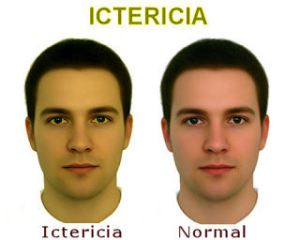 ictericia+espanhol