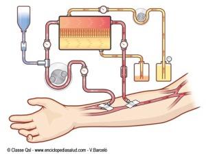 dialisis2