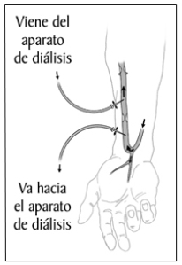 fistula-SP