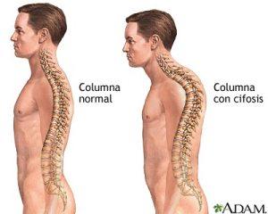 cifosis_postural