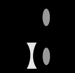 250px-Myopia-2-3_svg