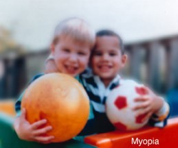 Human_eyesight_two_children_and_ball_with_myopia