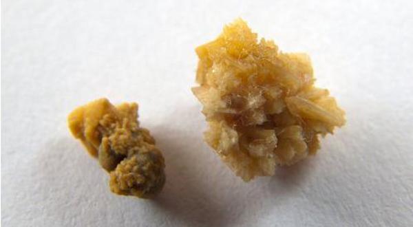 cuales son los sintomas que produce el acido urico tener bajo el acido urico cristales de acido urico en sedimento de orina