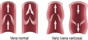 varices 1