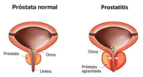 prostatitis_G