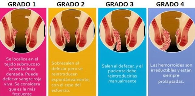tiposhemorroides